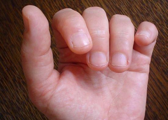 Como parar de roer unhas definitivamente