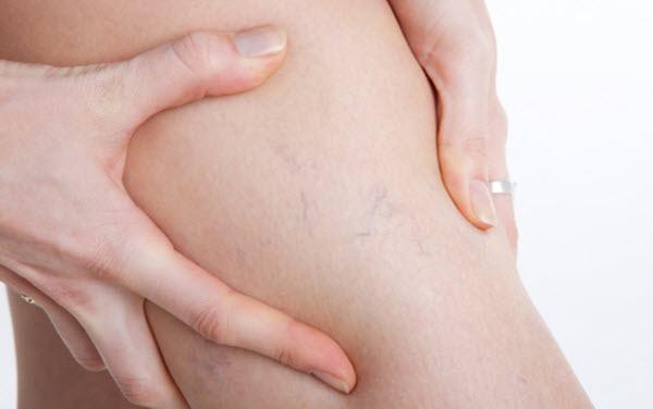 Como aliviar dor das varizes