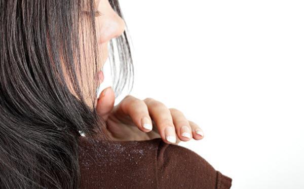 Como diminuir a caspa do cabelo